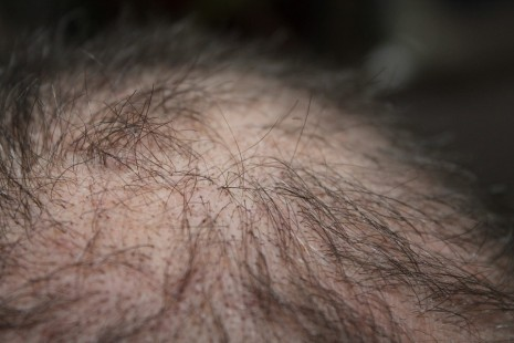 مراحل تساقط الشعر