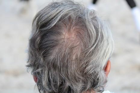 شيب الشعر الابيض في المنام