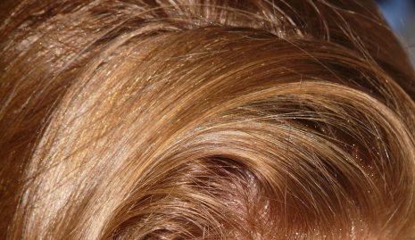 تفسير حلم رؤية قشرة الشعر في الرأس في المنام
