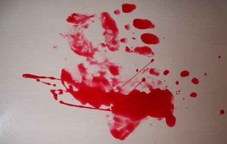 تفسير حلم خروج الدم من الأنف أو الفم