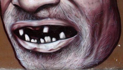 fall of teeth تفسير حلم سقوط الاسنان